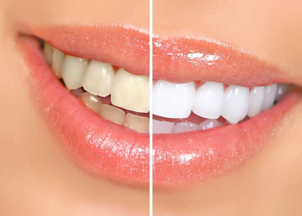 Clareamento-Dental_victa odontologia