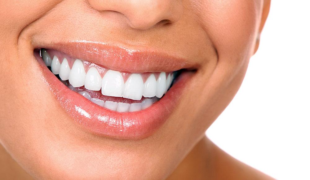 Saiba-como-ter-um-sorriso-mais-branco-victa odontologia
