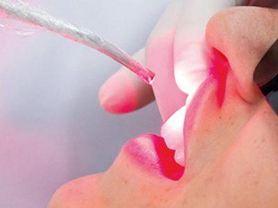 laserterapia-victa odontologia